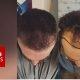 Igal aastal suunduvad tuhanded taanduva juuksepiiriga mehed Türki, et viia läbi juuste siirdamine